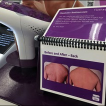 Hair Removal Bolt Spiral Bind 3